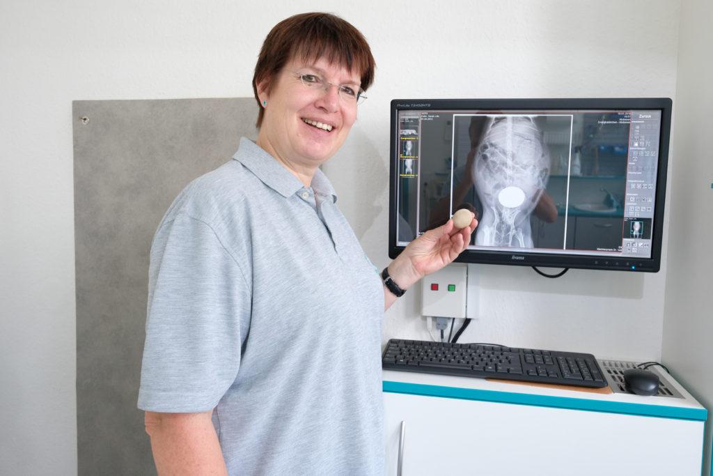 Frau Dr. Veit hält einen Blasenstein vor das passende Röntgenbild.